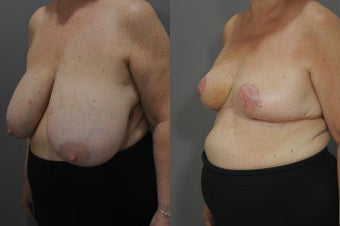 64 year old female after 1504266