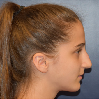 17 or under year old woman treated with Nose Surgery before 3306000