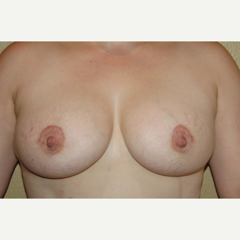 35-44 year old woman treated with Breast Implants after 3719191