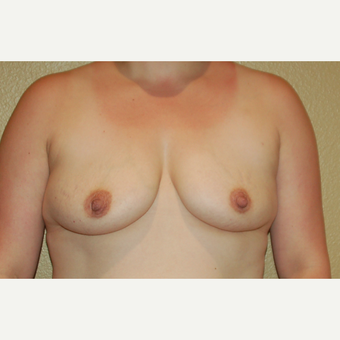 35-44 year old woman treated with Breast Implants before 3719191