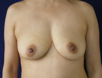 45 Year Old Female, Breast Implant Removal, No Breast Lift after 1166107