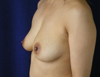 45 Year Old Female, Breast Implant Removal, No Breast Lift 1166107