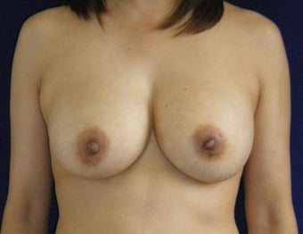 45 Year Old Female, Breast Implant Removal, No Breast Lift before 1166107