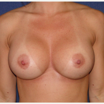 35-44 year old woman treated with Breast Augmentation after 3240016