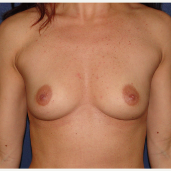 35-44 year old woman treated with Breast Augmentation before 3240016