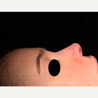 18-24 year old woman treated with Rhinoplasty after 3211769