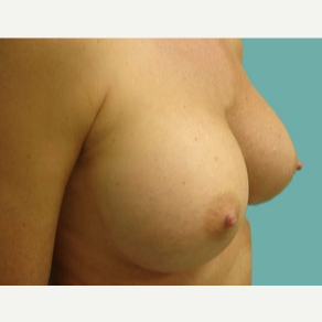 35-44 year old woman treated with Breast Augmentation after 3167930
