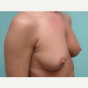 35-44 year old woman treated with Breast Augmentation before 3167930