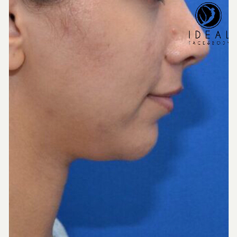 25-34 year old woman treated with Chin Liposuction before 3613530