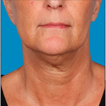 "55-64 year old woman  treated with Kybella for corruption of sub mental fullness /""double chin"" before 2334976"
