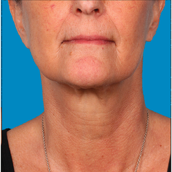 "55-64 year old woman  treated with Kybella for corruption of sub mental fullness /""double chin"" after 2334976"