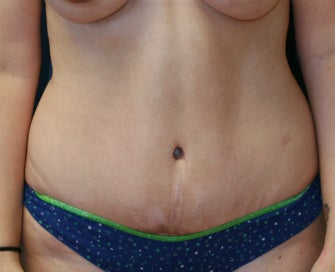 Tummy Tuck (Abdominoplasty) after 1025631