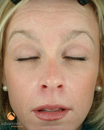 Female Patient Treated with BOTOX® Cosmetic before 1047038