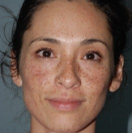 25-34 year old woman treated with Age Spots Treatment before 3642434