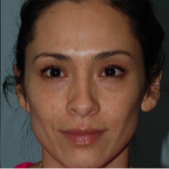 25-34 year old woman treated with Age Spots Treatment after 3642434