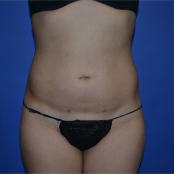 18-24 year old woman treated with Liposuction after 3611077