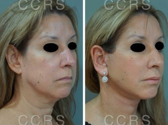 55 year old woman treated with SMAS Facelift before 3031535