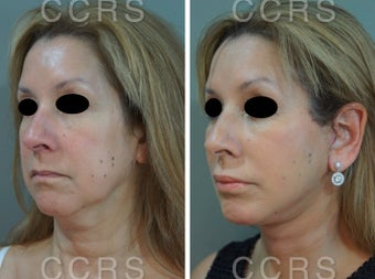 55 year old woman treated with SMAS Facelift after 3031535
