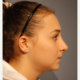 17 or under year old woman treated with Rhinoplasty after 3277637