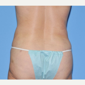 55-64 year old woman treated with Liposuction after 3258593