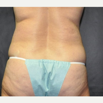 55-64 year old woman treated with Liposuction before 3258593