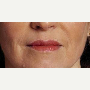 Woman treated with Restylane after 2032764
