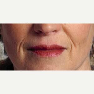 Woman treated with Restylane before 2032764