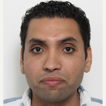 25-34 year old man treated with Rhinoplasty after 3340492