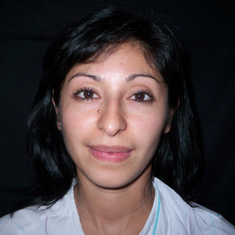 25-34 year old woman treated with Rhinoplasty before 3838333