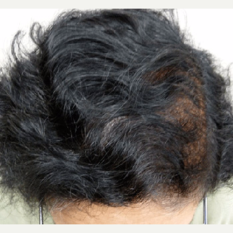 50 year old woman treated with Hair Transplant after 3608881