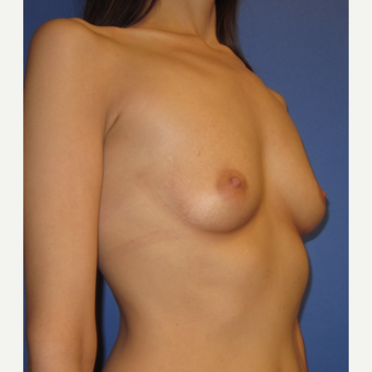 25-34 year old woman treated with Breast Augmentation (371cc) before 3098507