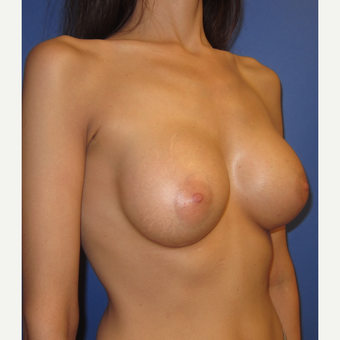 25-34 year old woman treated with Breast Augmentation (371cc) after 3098507