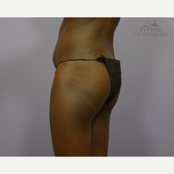18-24 year old woman treated with Butt Augmentation before 3421195