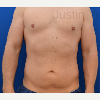 35-44 year old man treated with Tummy Tuck before 2746050