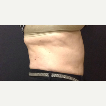 45-54 year old woman treated with SculpSure before 3625009