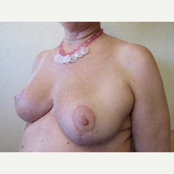 65-74 year old woman treated with Breast Reduction after 3412560