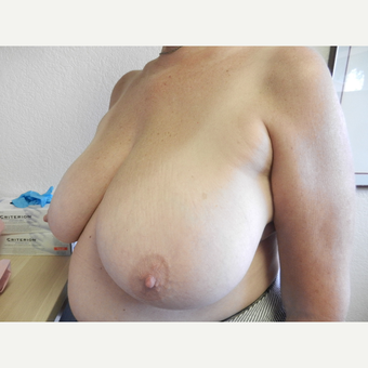 65-74 year old woman treated with Breast Reduction before 3412560