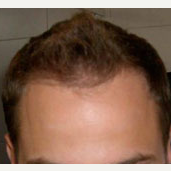 35 year old man treated with Hair Loss Treatment after 3839176