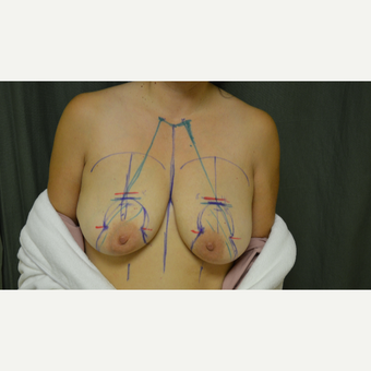 45-54 year old woman treated with Breast Lift/reduction before 3665009