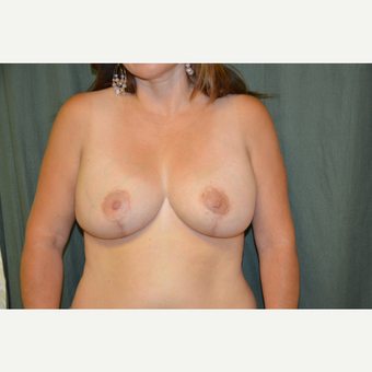 45-54 year old woman treated with Breast Lift/reduction after 3665009