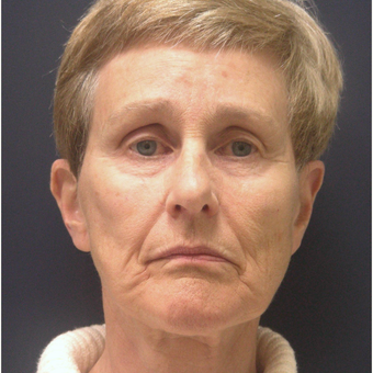 65-74 year old woman treated with Injectable Fillers before 3176422
