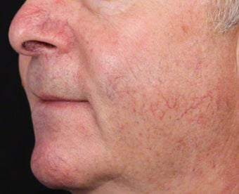 VBeam for Facial Veins before 539837