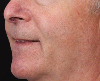 VBeam for Facial Veins after 539837