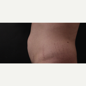 30 year old man treated with CoolSculpting after 3630345