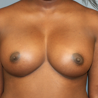 Breast augmentation with Ideal Breastimplants 515cc. after 3371672