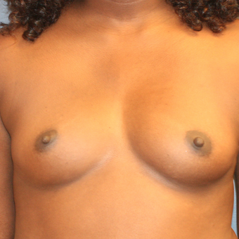 Breast augmentation with Ideal Breastimplants 515cc. before 3371672