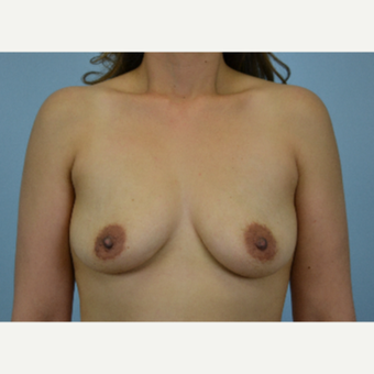 27 year old woman treated with Breast Augmentation - 425 cc high profile silicone gel before 3432269