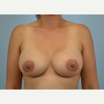 27 year old woman treated with Breast Augmentation - 425 cc high profile silicone gel after 3432269