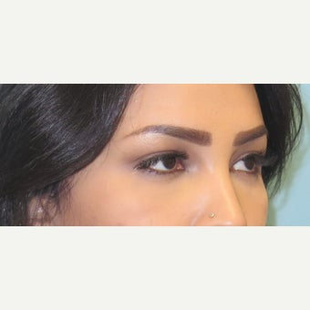25-34 year old woman treated with lower lid blepharoplasty. after 2438470