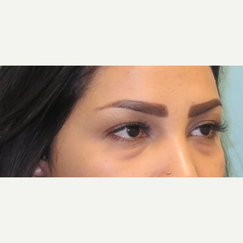 25-34 year old woman treated with lower lid blepharoplasty. before 2438470